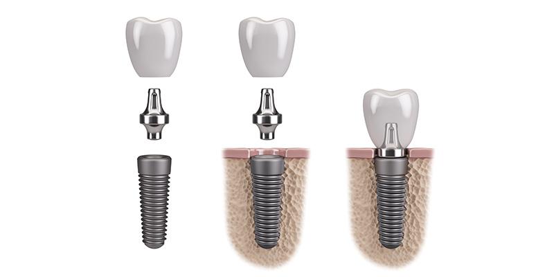 leistungen-implantate
