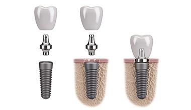 leistungen-teaser-implantate