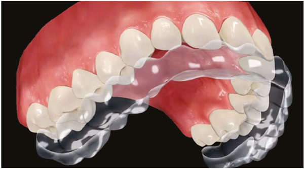 unsichtbare-zahnspange-1